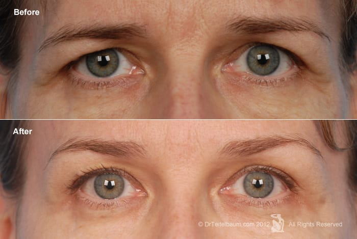 Brow Lift with Eyelift