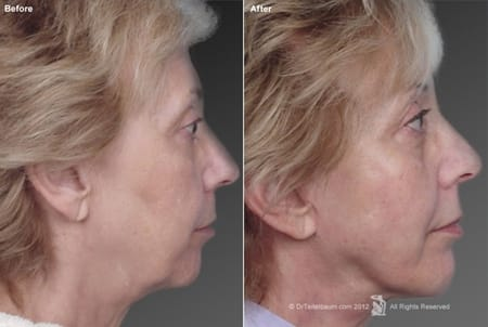 Chin Augmentation with Facelift