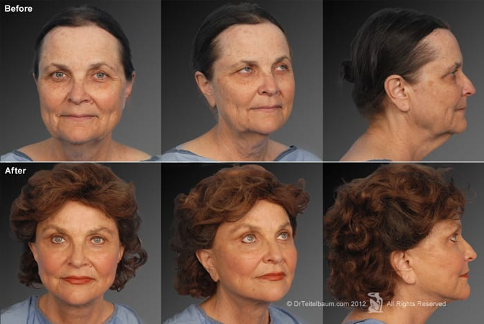 Brow Lift With Facelift