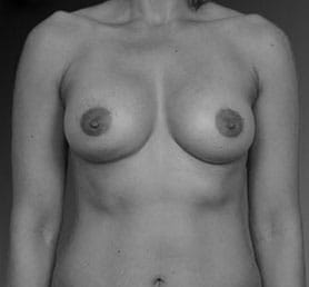 African American Breast Augmentation Los Angeles