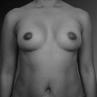 Asian Breast Augmentation Los Angeles