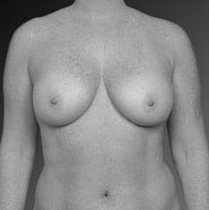 Breast Augmentation with Lift Los Angeles