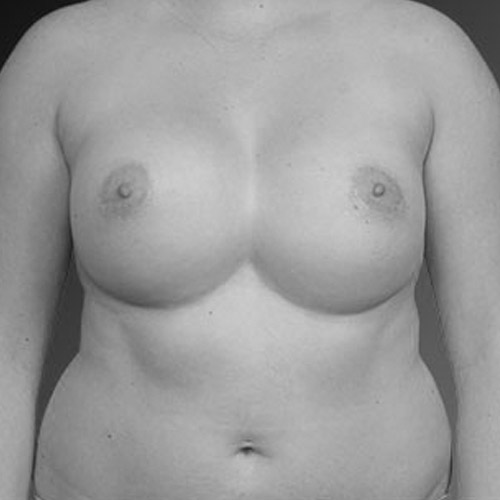 Breast Augmentation Revision Los Angeles