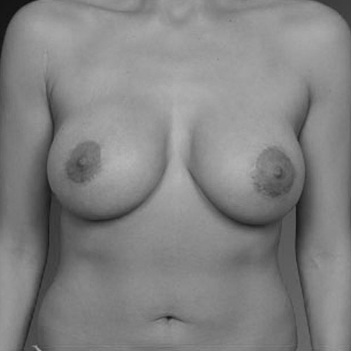 Best Breast Lift Los Angeles