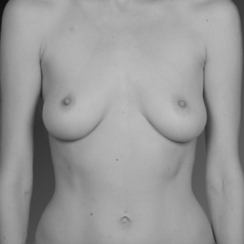Breast Reduction Surgeon Los Angeles