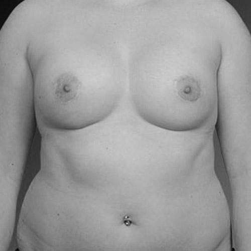 Best Breast Revision Los Angeles