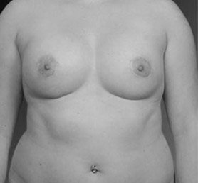 Symmastia Breast Implant Problems