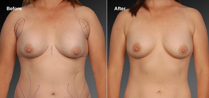 Upper or Outer Breast Liposuction