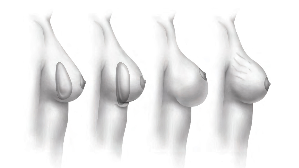 Best Breast Implants Los Angeles