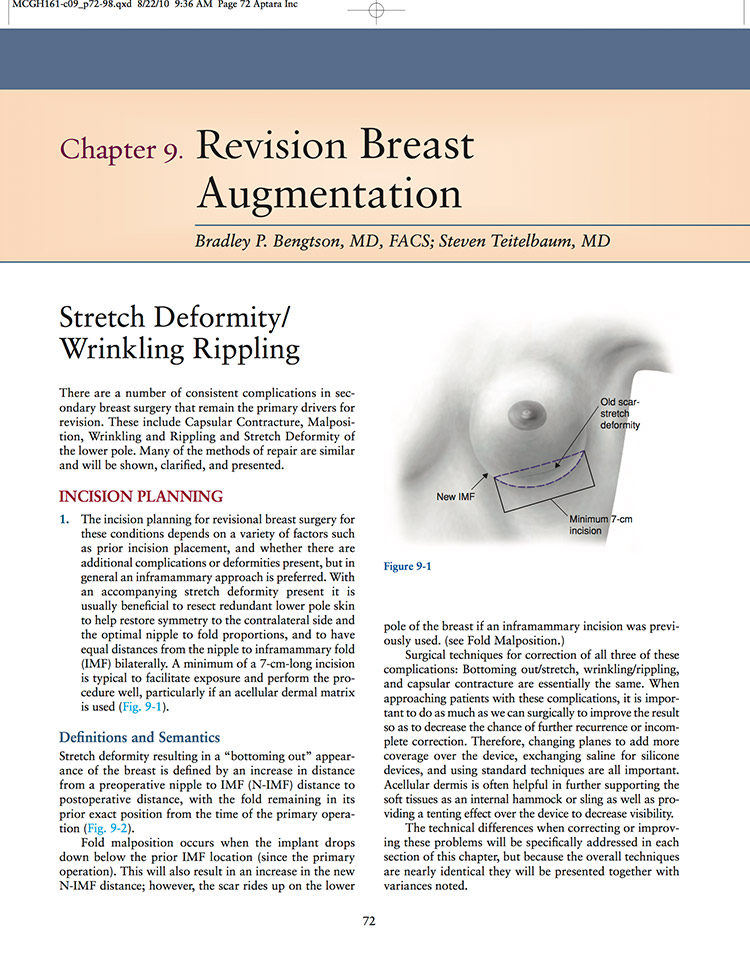 Breast Revision Author & Teacher