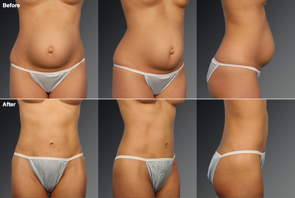 Mini Tummy Tuck Before & After 1