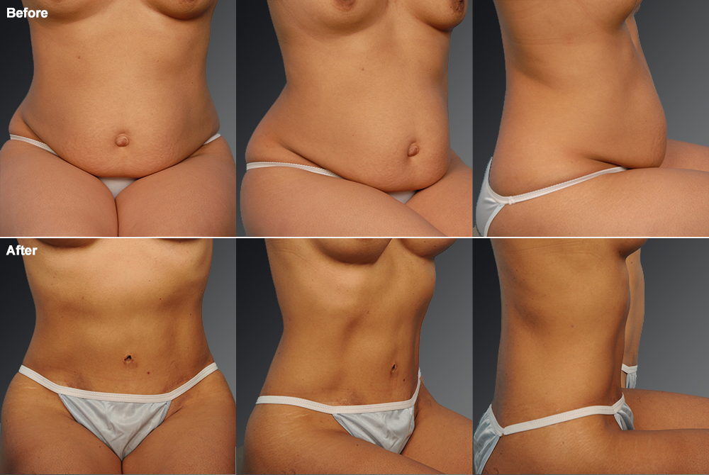 Mini Tummy Tuck Before & After 3
