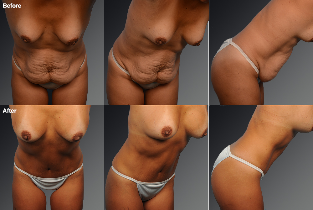 Mini Tummy Tuck Before & After 6