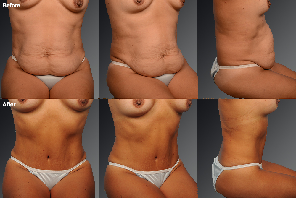 Mini Tummy Tuck Before & After 7