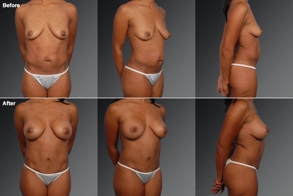 Mini Tummy Tuck Before & After 9