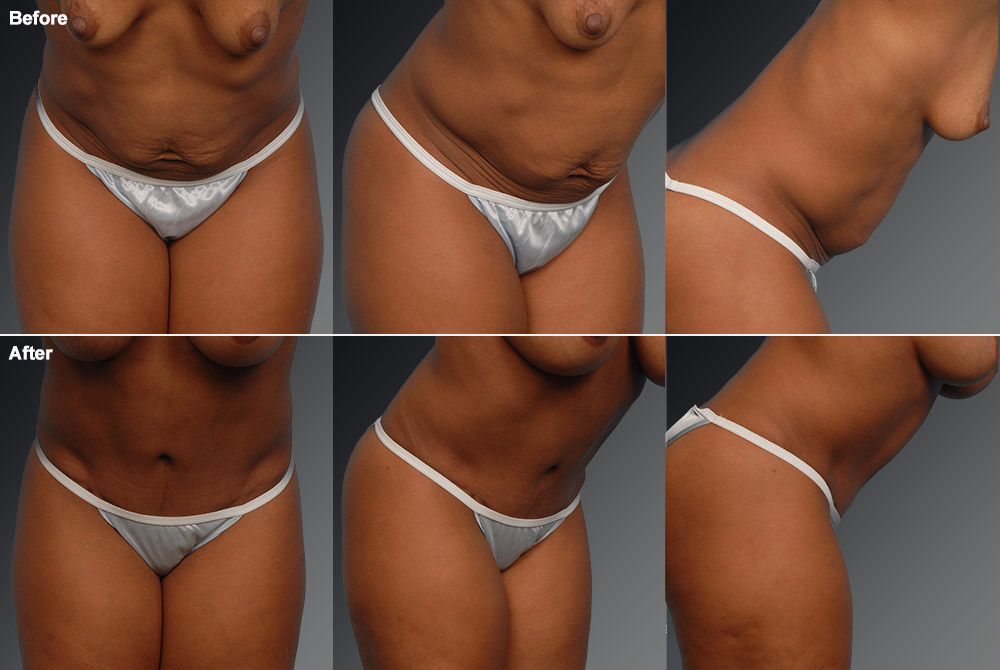 Mini Tummy Tuck Before & After 10