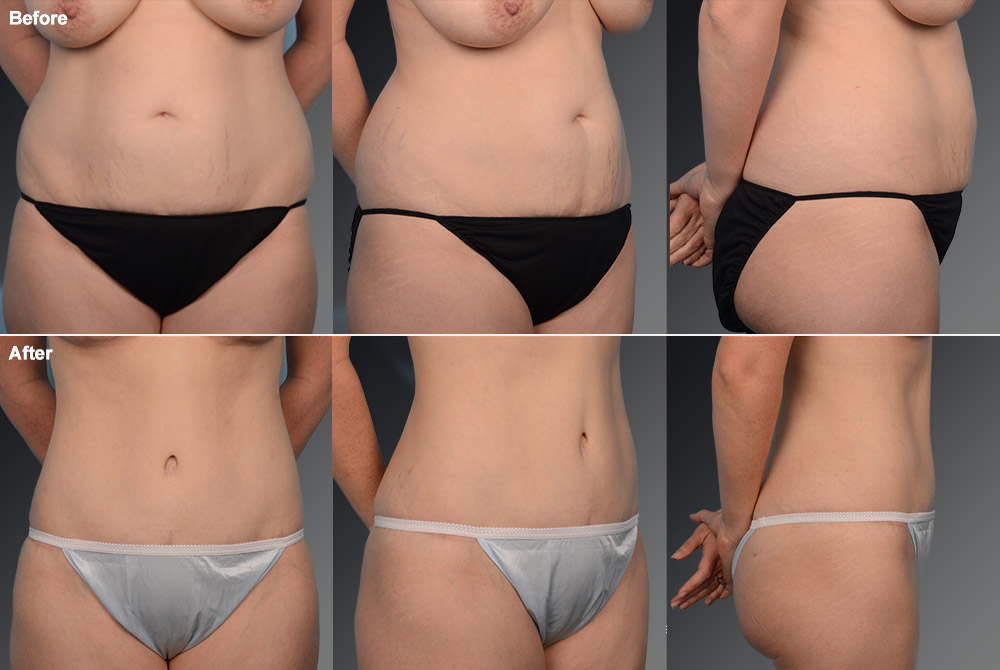 Mini Tummy Tuck Before & After 12