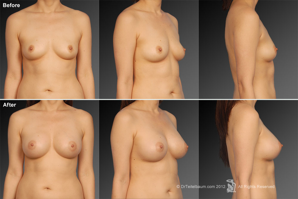 Breast implants okatie