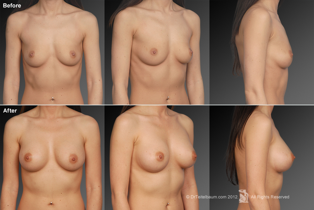 Latina Breast Augmentation Los Angeles