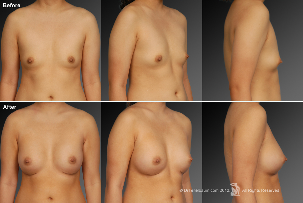 young-female-breast-development-nude-naked