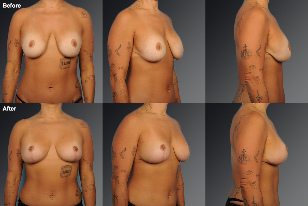 Capsular Contracture Before & After 3