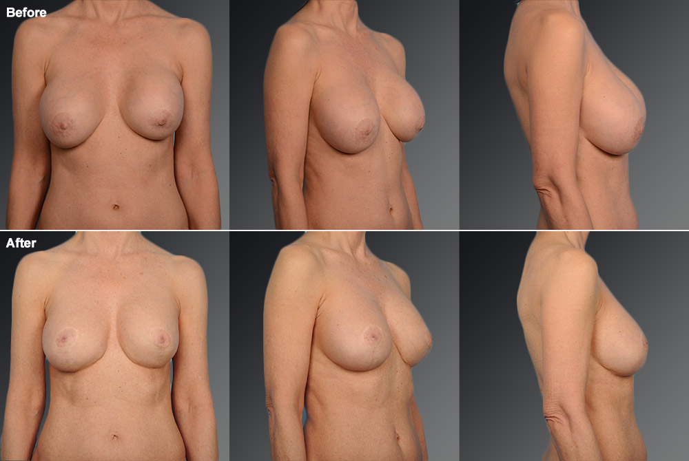 Capsular Contracture Before & After 4