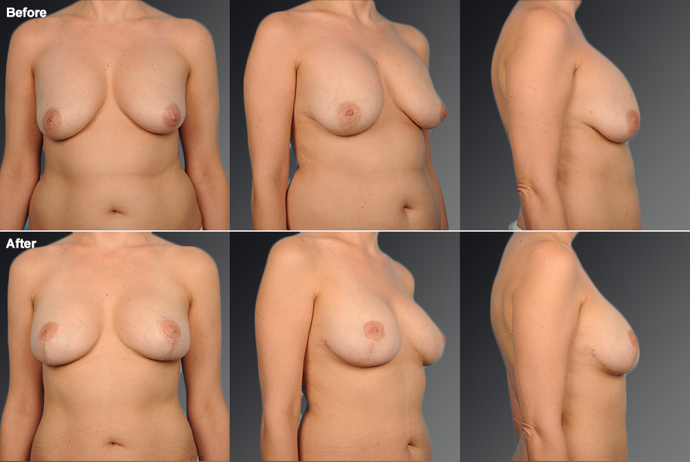 Capsular Contracture Before & After 5