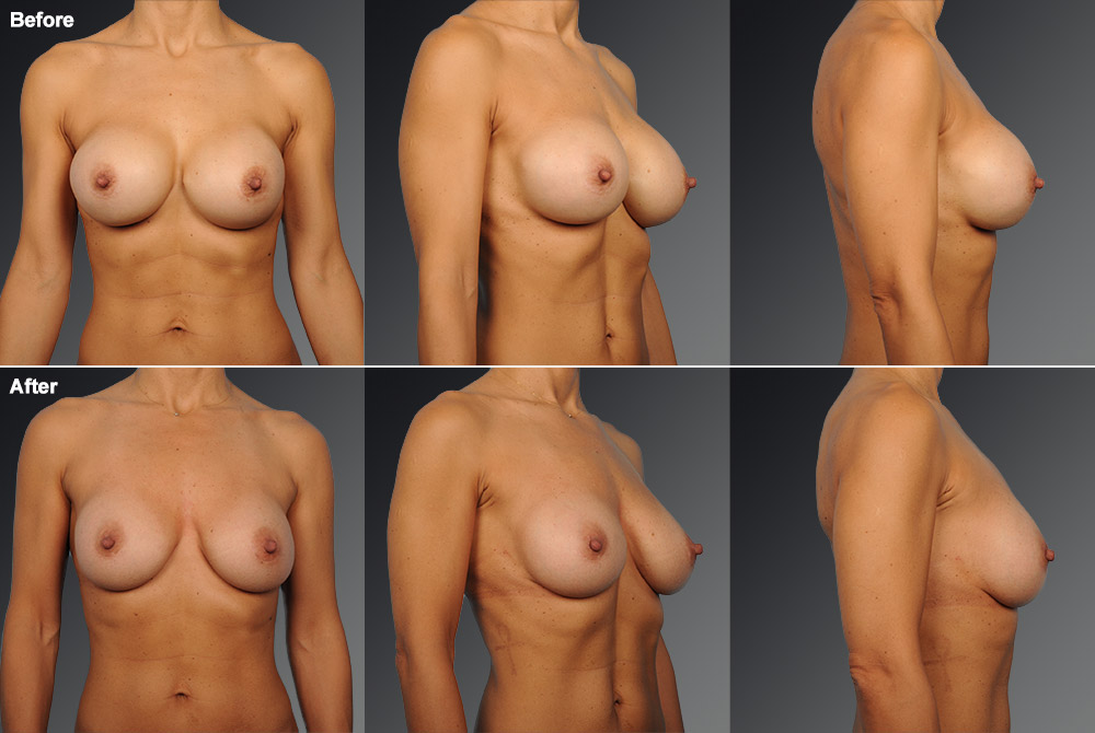 Capsular Contracture Before & After 6