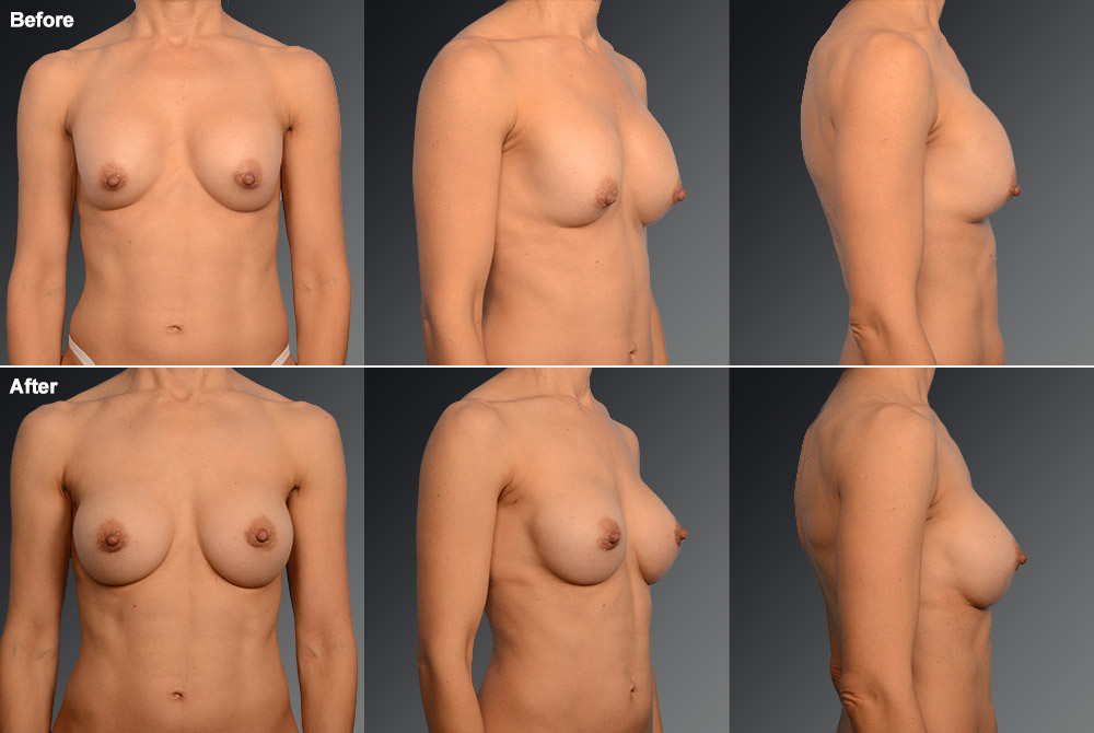 Capsular Contracture Before & After 8