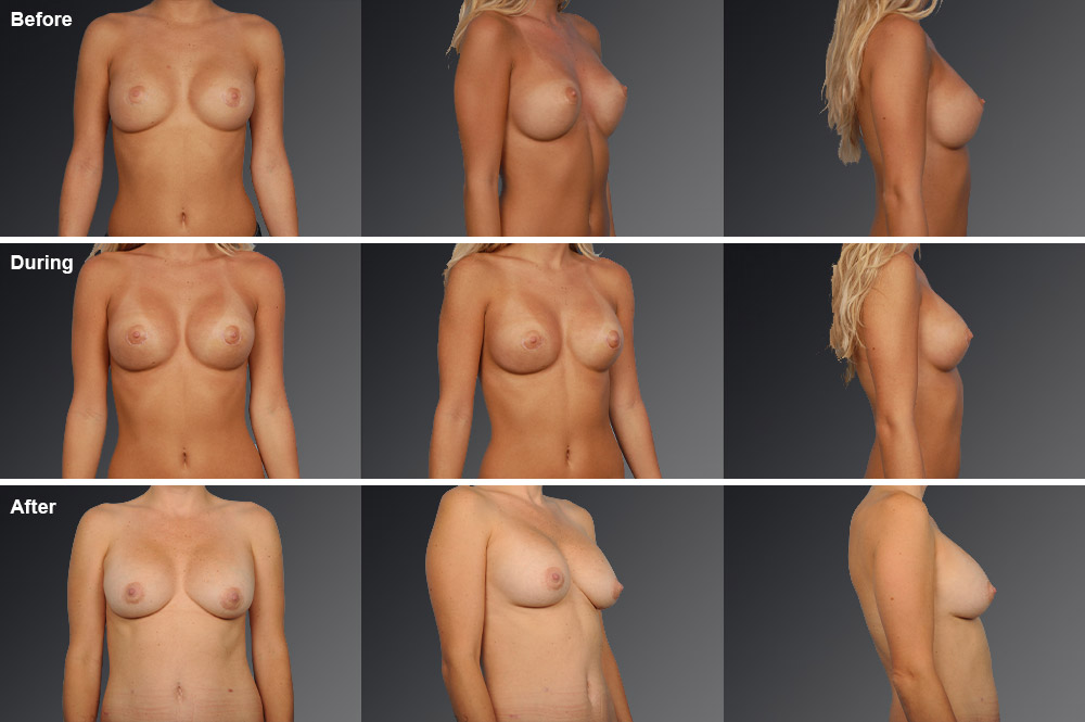 Capsular Contracture Before & After 9