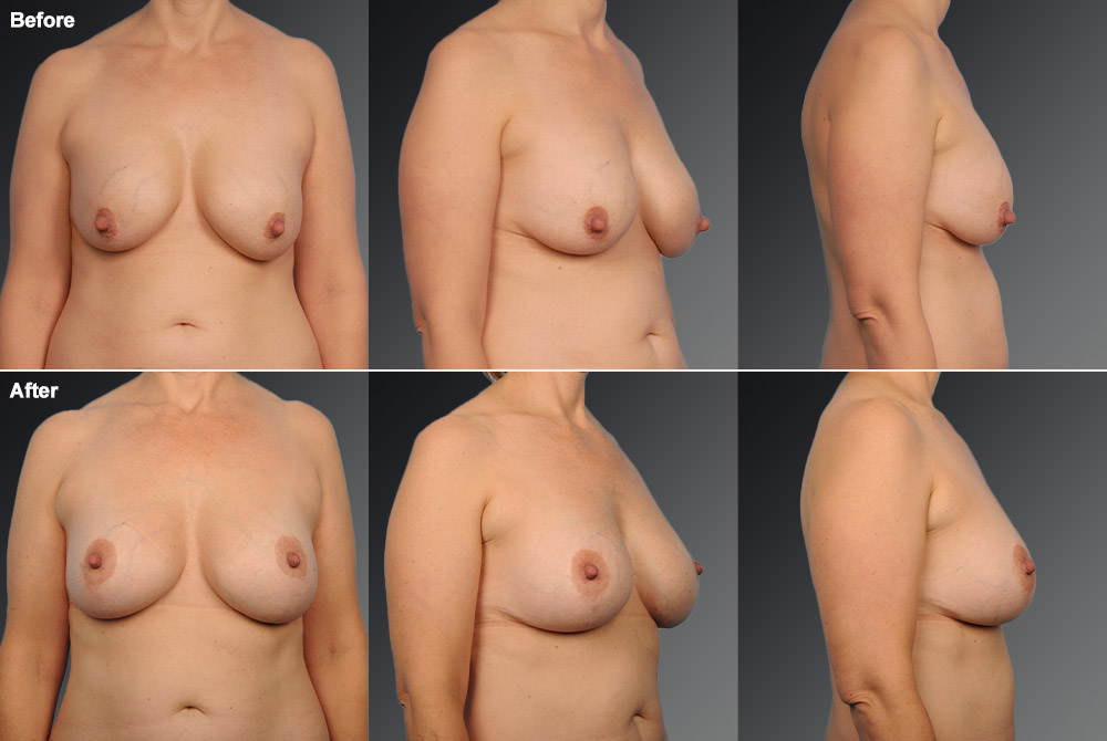 Capsular Contracture Before & After 12