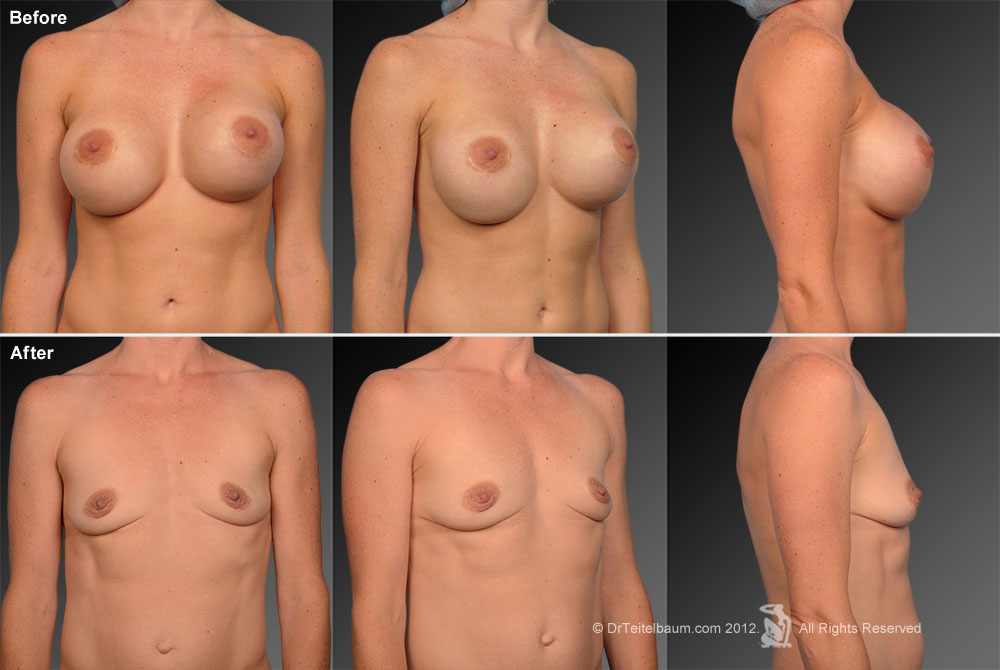 Capsular Contracture Before & After 14