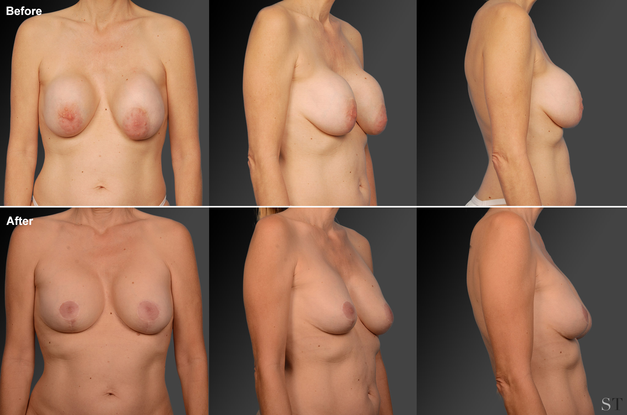 Capsular Contracture Before & After 15