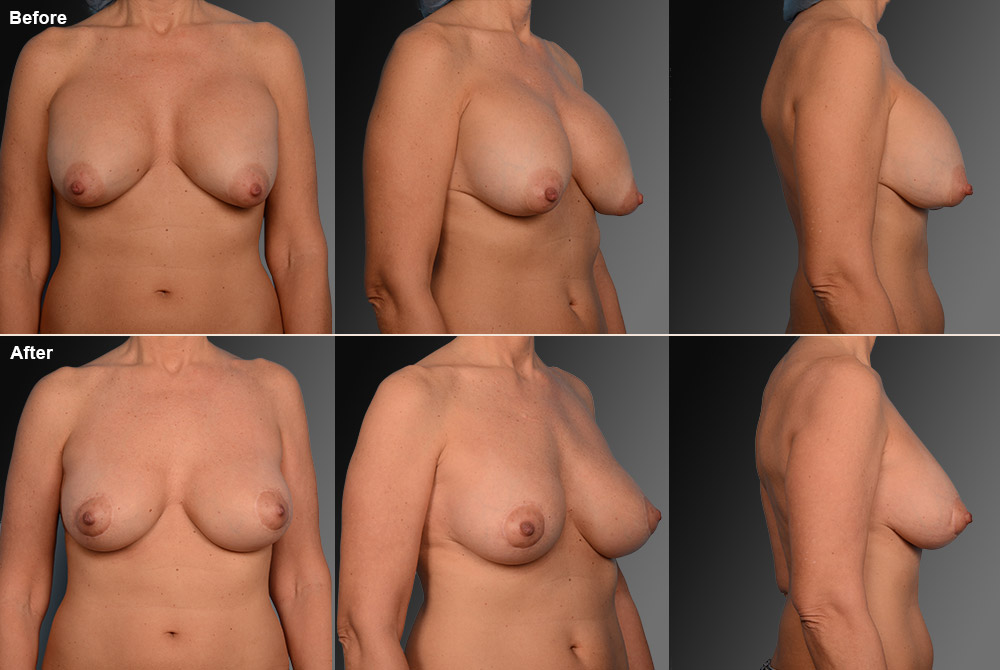 Capsular Contracture Before & After 16