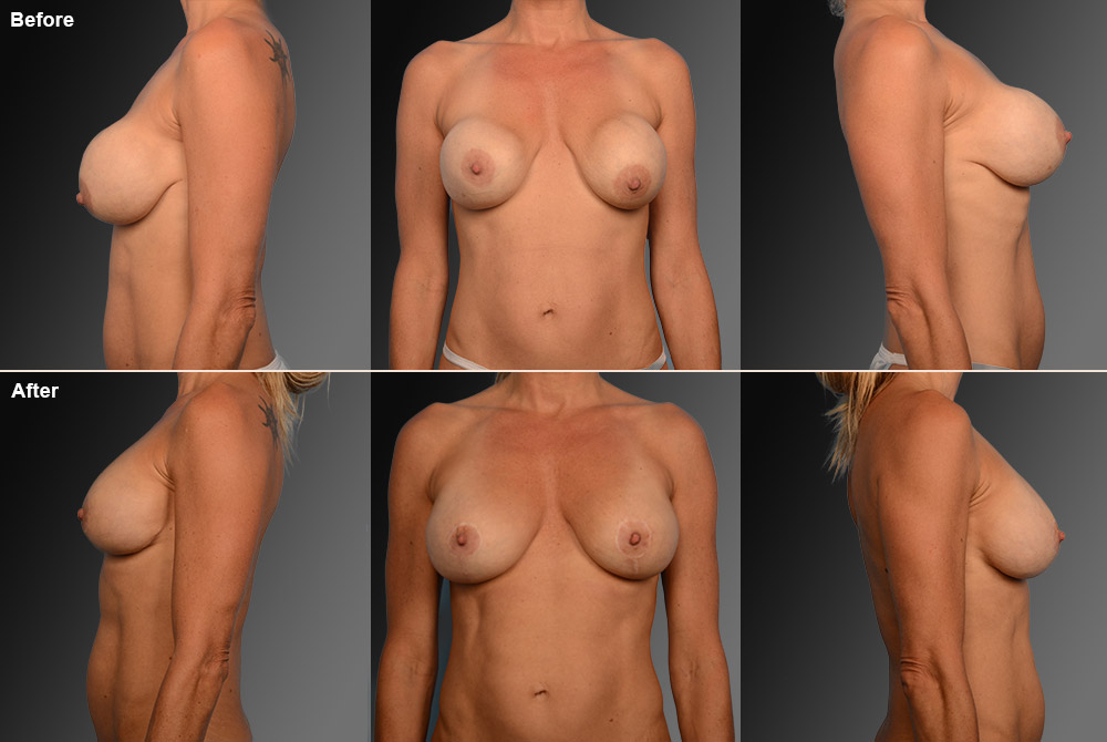 Capsular Contracture Before & After 20