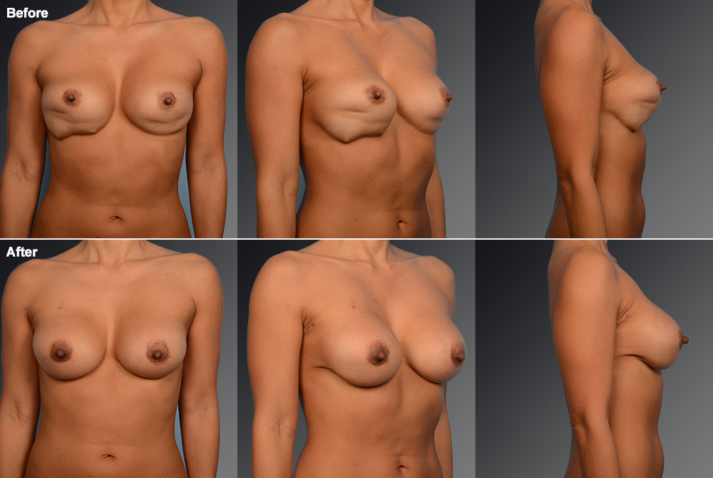 Capsular Contracture Before & After 21