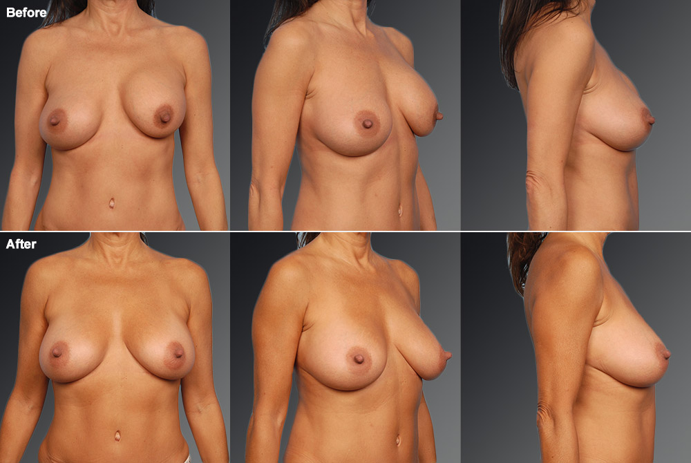 Capsular Contracture Before & After 22