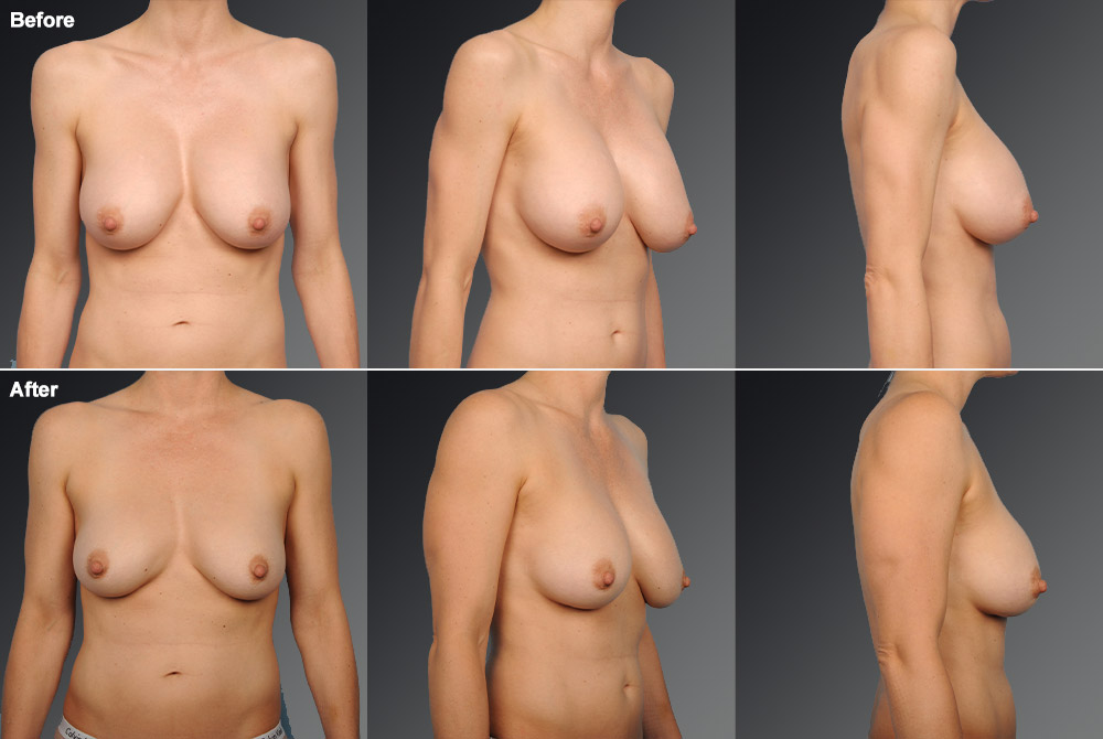 Capsular Contracture Before & After 23