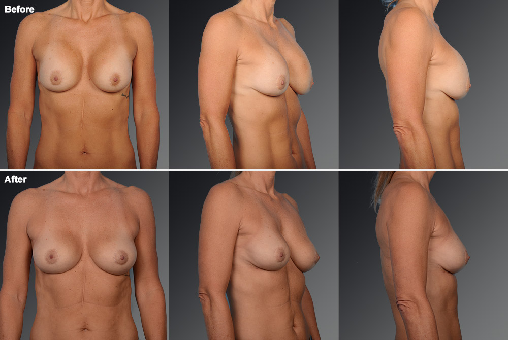 Capsular Contracture Before & After 24