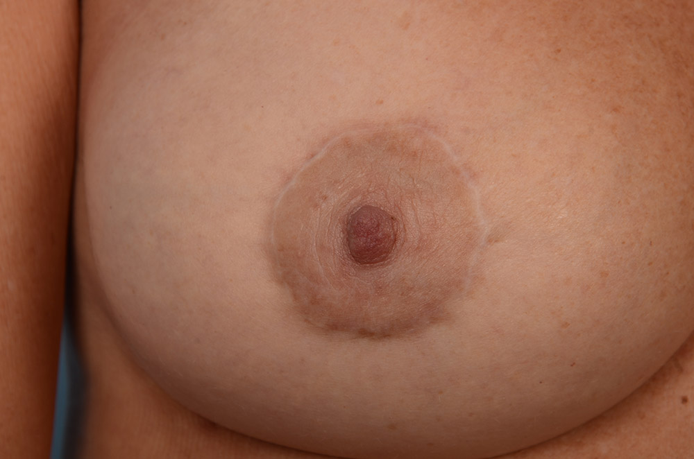 Capsular Contracture Before & After 25