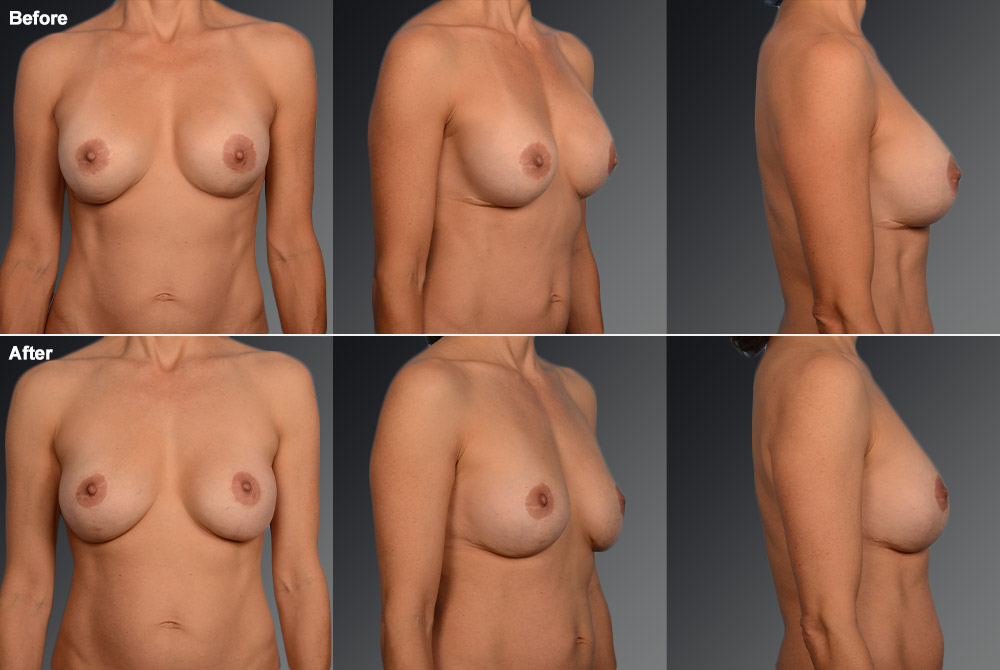 Capsular Contracture Before & After 26