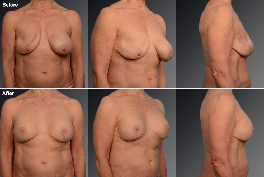 Capsular Contracture Before & After 27