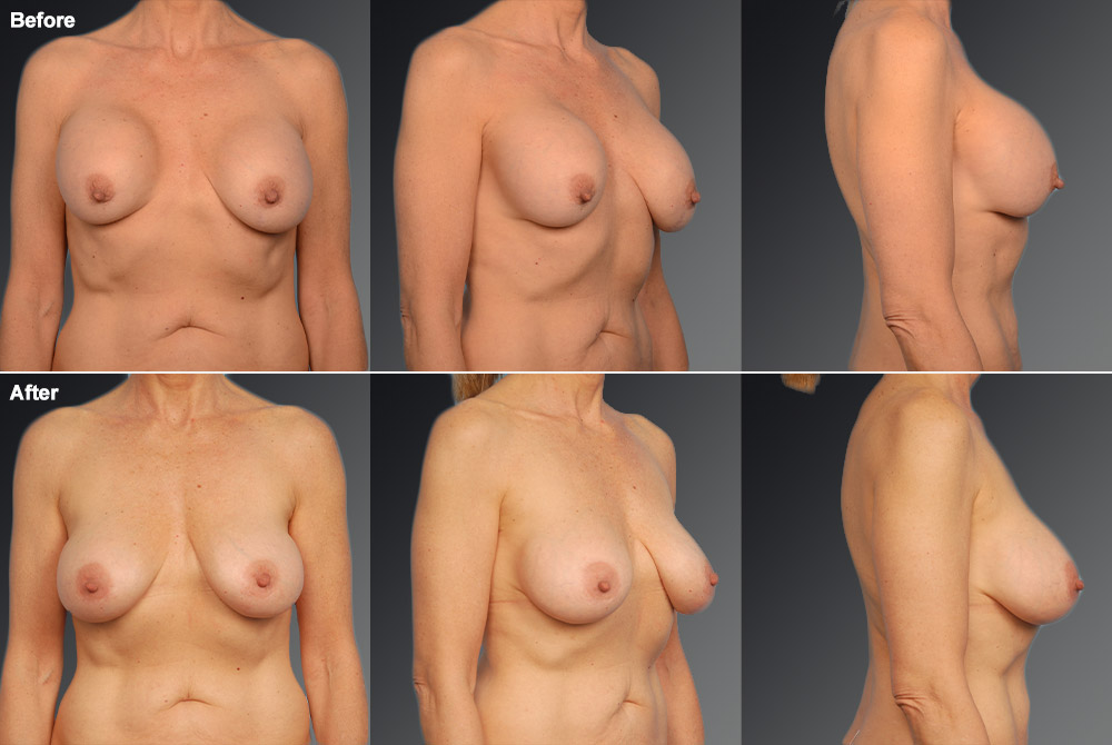 Capsular Contracture Before & After 28