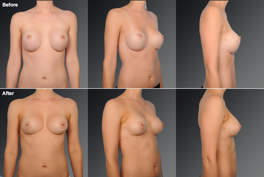 Capsular Contracture Before & After 30