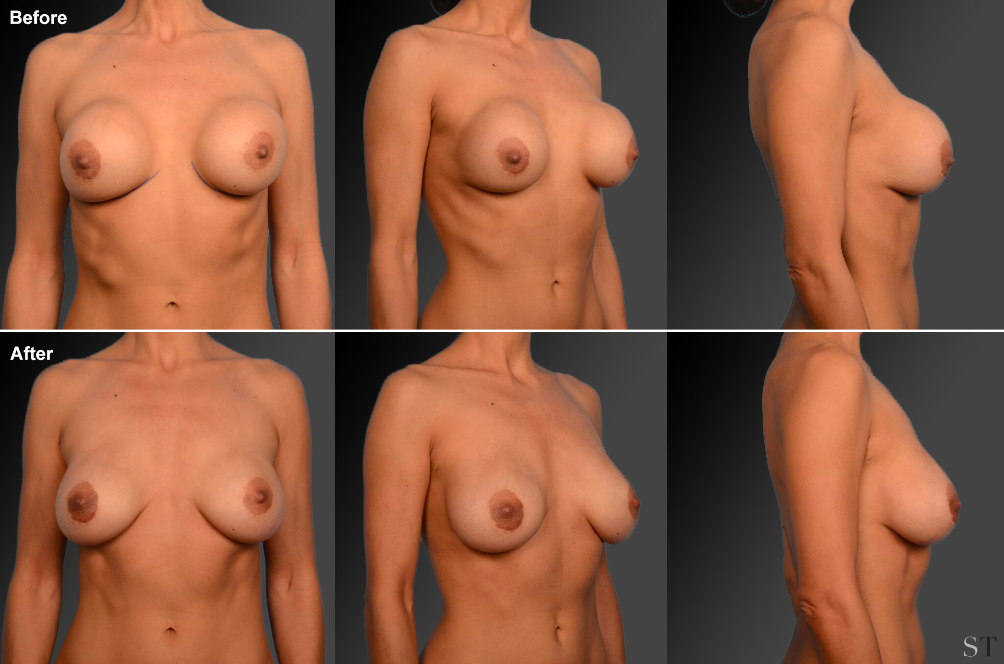 Capsular Contracture Before & After 31