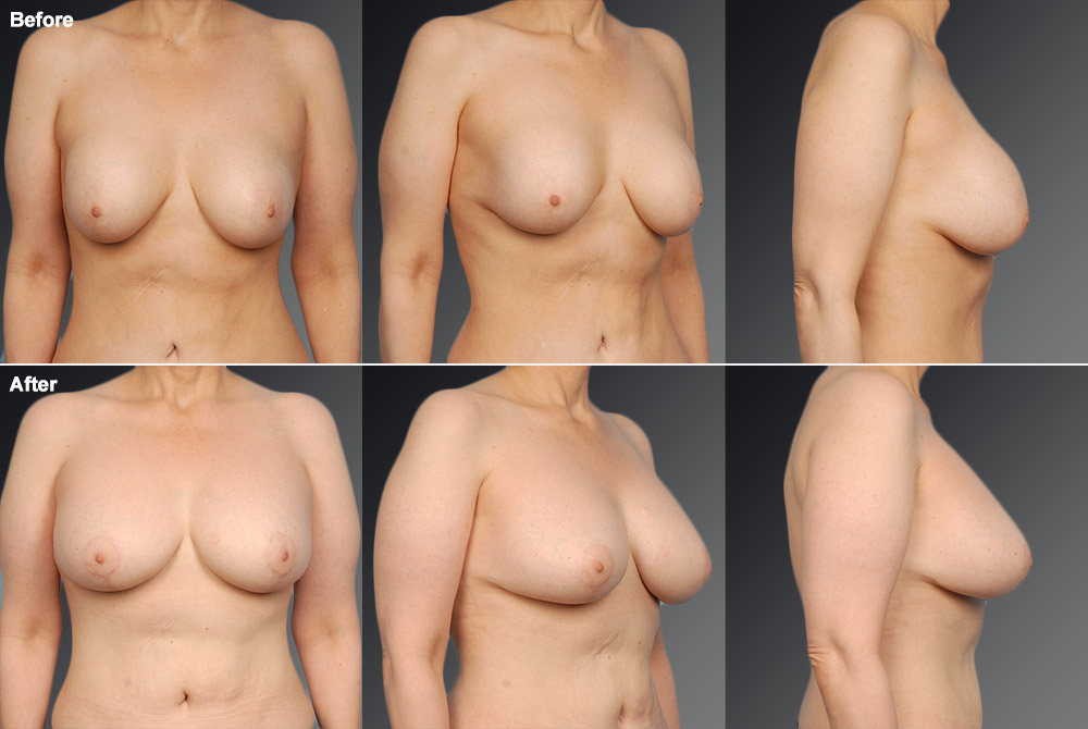 Capsular Contracture Before & After 32
