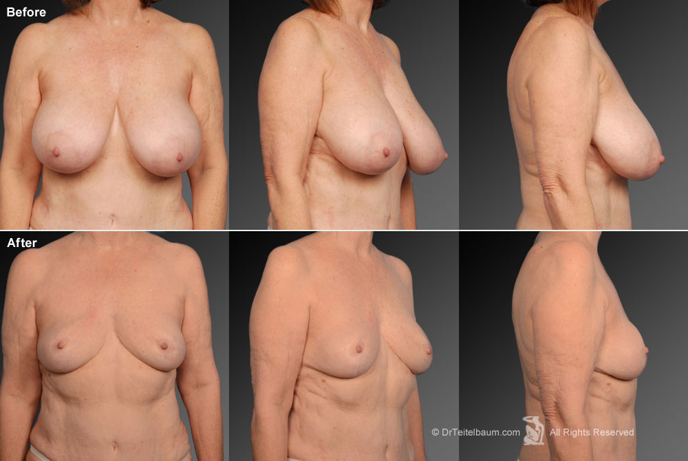 Breast Reduction Before & After 1