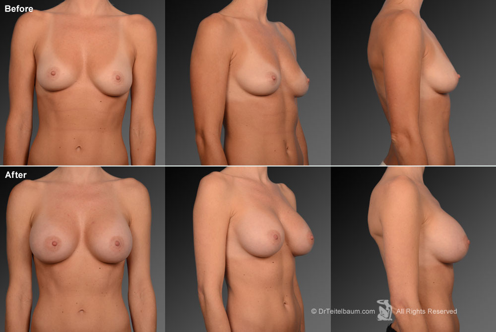 Breast Reduction Before & After 2
