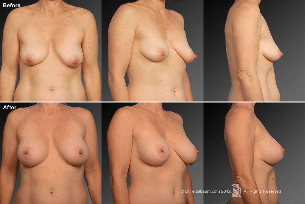 Breast Reduction Before & After 6
