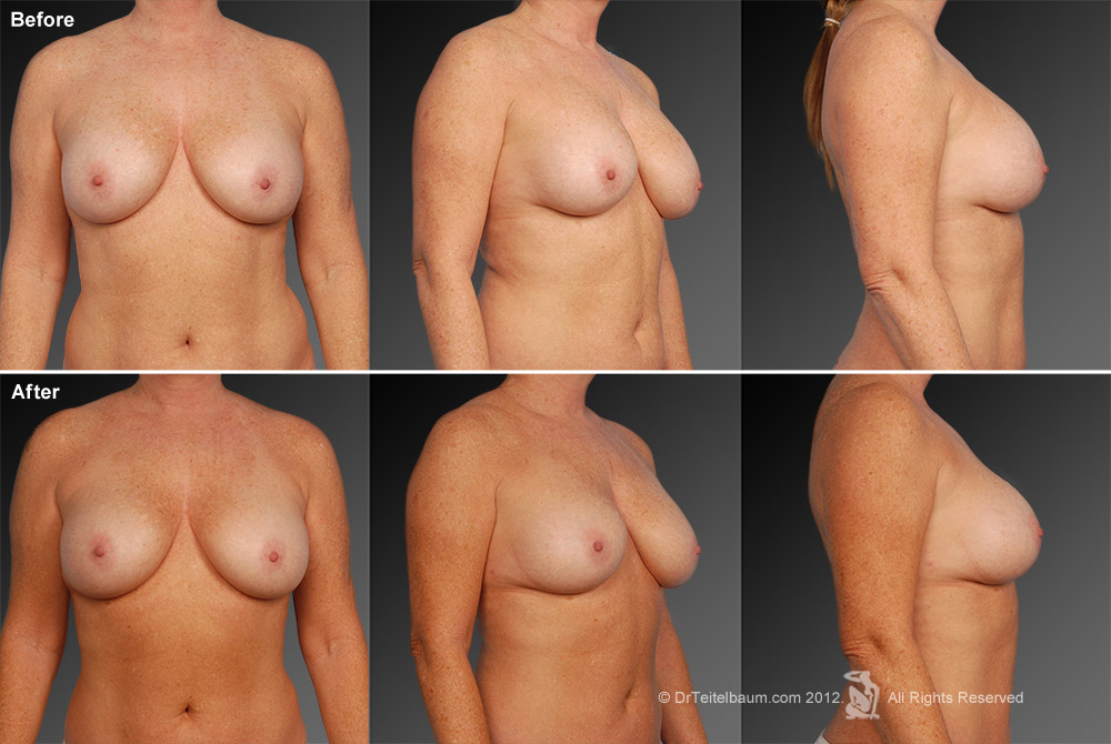Breast Reduction Before & After 7